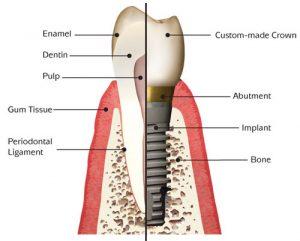 implantanatomy1